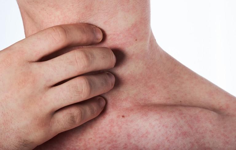 Zika Virus Rash- Symptoms, Treatments, Causes, & Preventions
